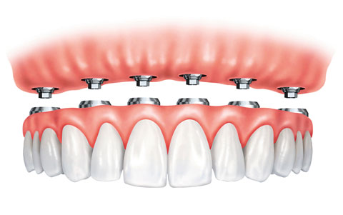 Fixed-in implant-supported denture