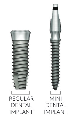 regular and mini dental implant