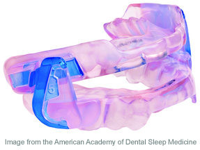 Sleep apnea appliance